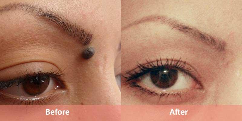 Cutis Skin Clinic, Cosmetology & Hair transplant Center